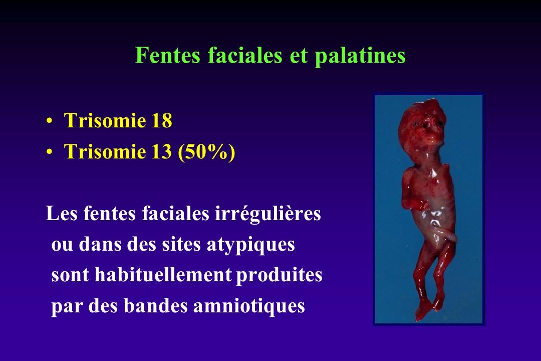 Fentes faciales et palatines