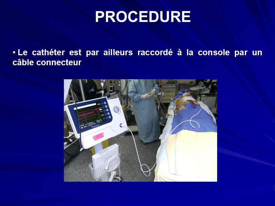 PROCEDURE Le cathéter est par ailleurs raccordé à la console par un câble connecteur