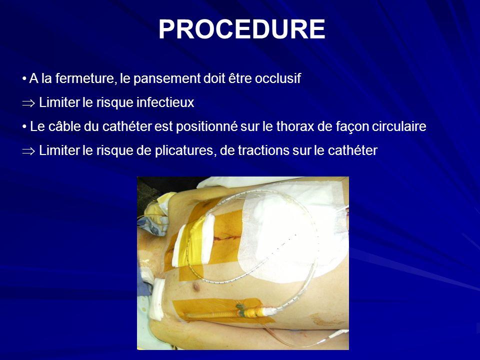 PROCEDURE A la fermeture, le pansement doit être occlusif