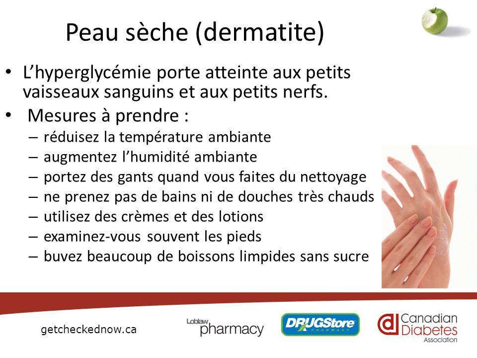 Peau sèche (dermatite)