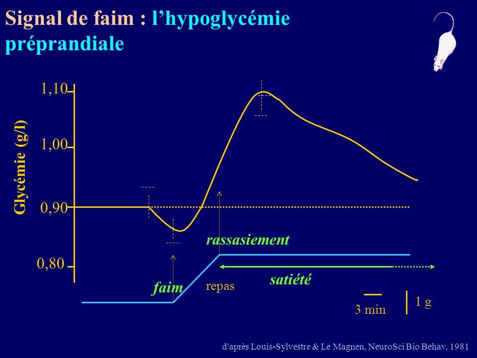 Signal de faim : l'hypoglycémie préprandiale