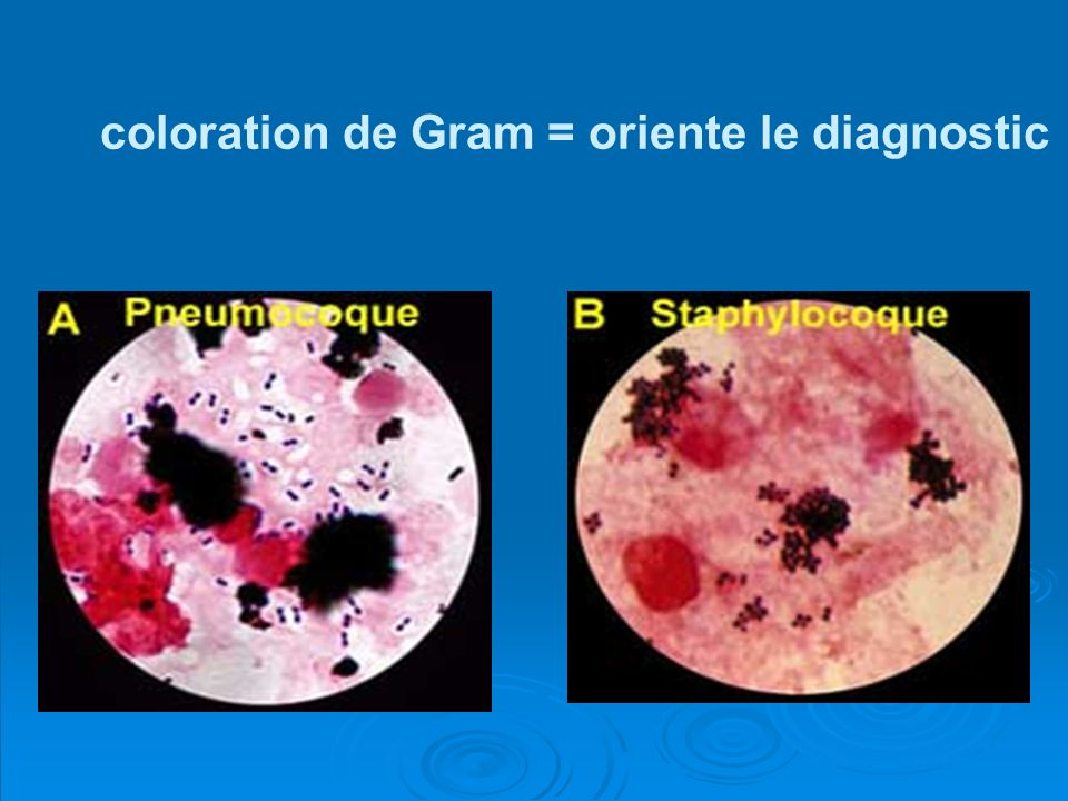 coloration de Gram = oriente le diagnostic