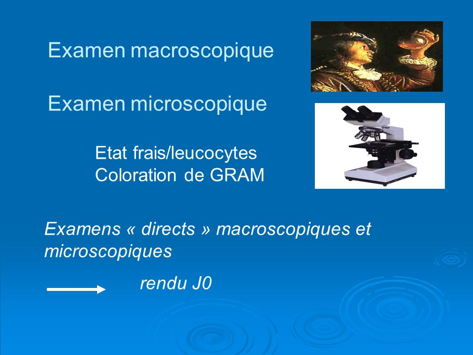 Examen macroscopique Examen microscopique Coloration de GRAM