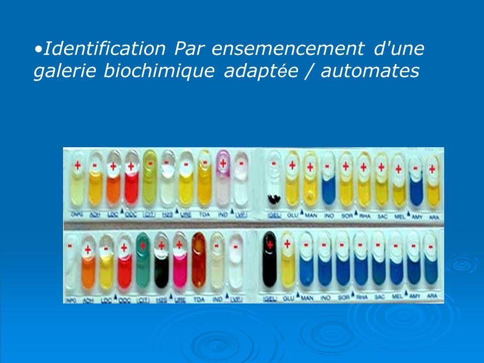 Identification Par ensemencement d une galerie biochimique adaptée / automates