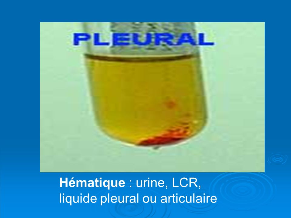 Hématique : urine, LCR, liquide pleural ou articulaire