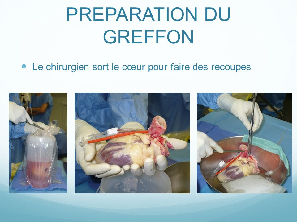 PREPARATION DU GREFFON