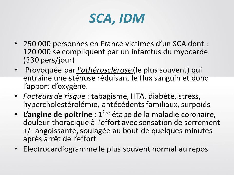 SCA, IDM 250 000 personnes en France victimes d'un SCA dont : 120 000 se compliquent par un infarctus du myocarde (330 pers/jour)