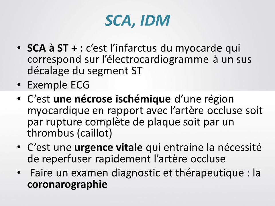 SCA, IDM SCA à ST + : c'est l'infarctus du myocarde qui correspond sur l'électrocardiogramme à un sus décalage du segment ST.