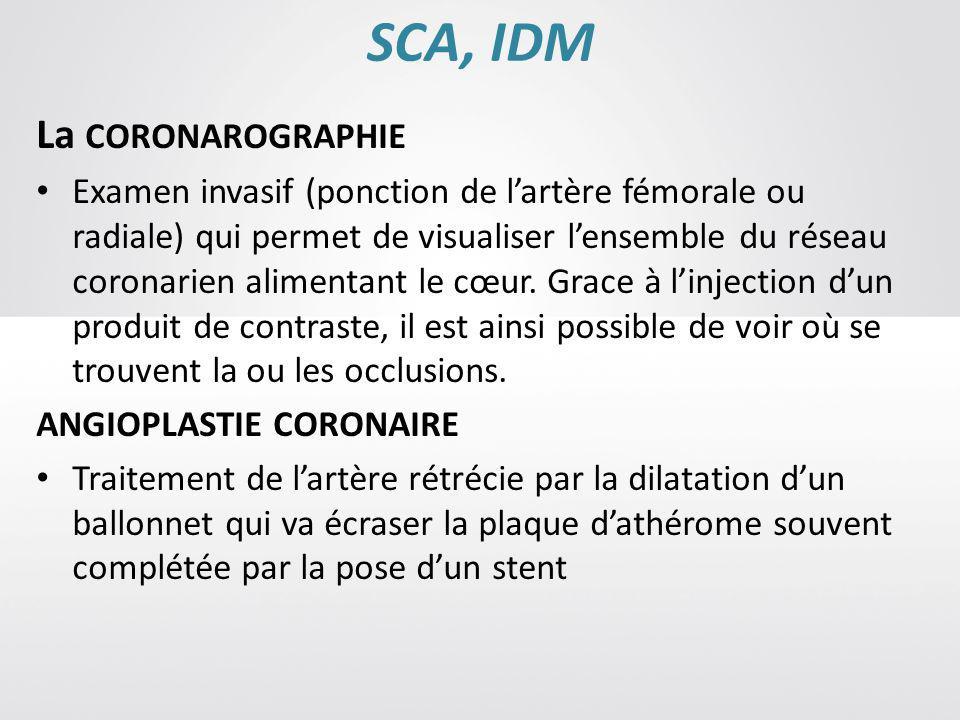 SCA, IDM La CORONAROGRAPHIE