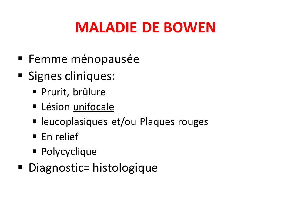 MALADIE DE BOWEN Femme ménopausée Signes cliniques: