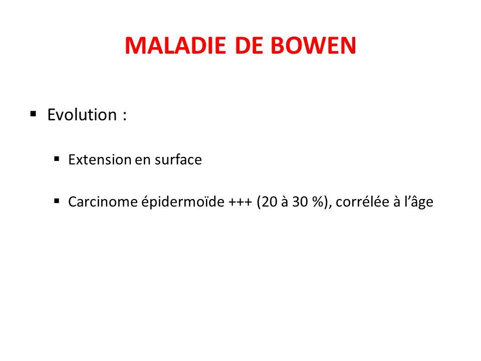 MALADIE DE BOWEN Evolution : Extension en surface