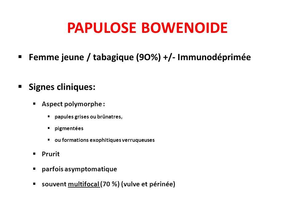 PAPULOSE BOWENOIDE Femme jeune / tabagique (9O%) +/- Immunodéprimée