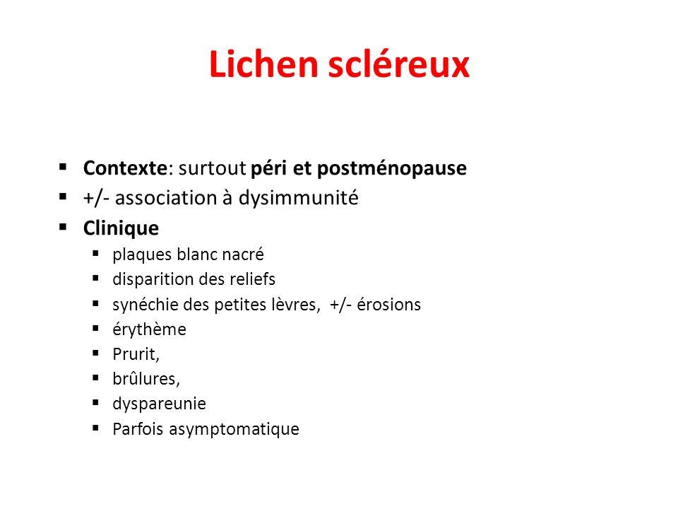 Lichen scléreux Contexte: surtout péri et postménopause