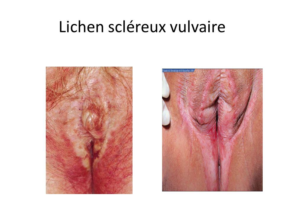 Lichen scléreux vulvaire