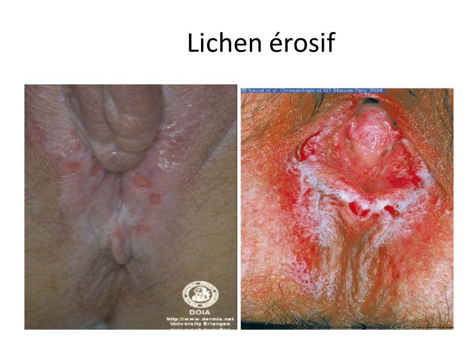 Lichen érosif