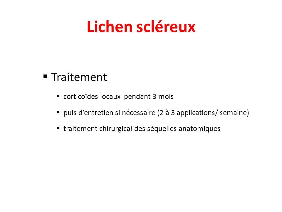Lichen scléreux Traitement corticoïdes locaux pendant 3 mois