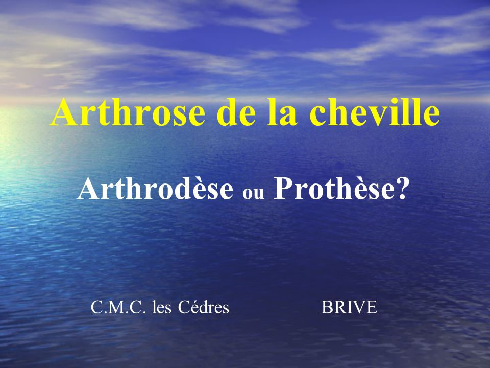 Arthrose de la cheville