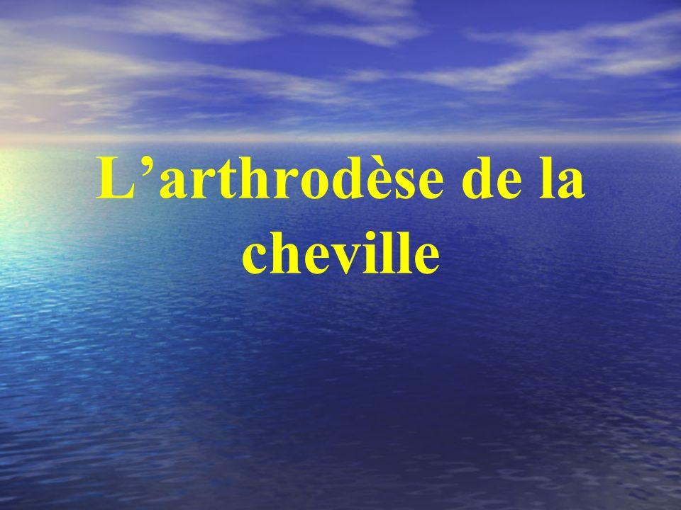 L'arthrodèse de la cheville