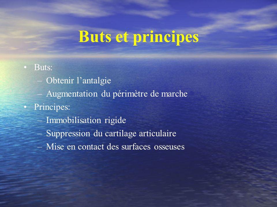 Buts et principes Buts: Obtenir l'antalgie