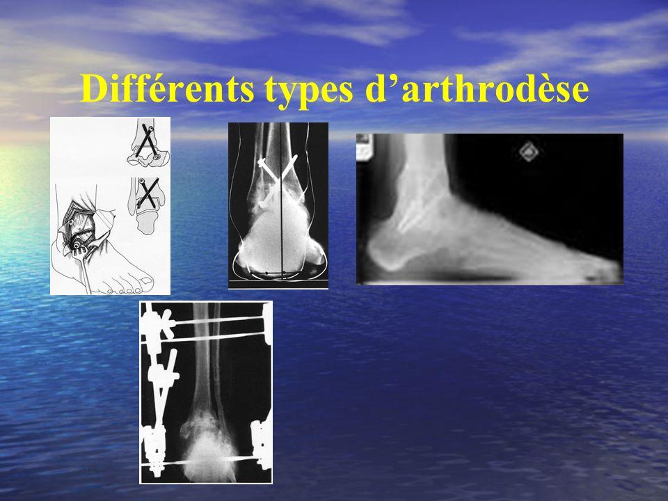 Différents types d'arthrodèse