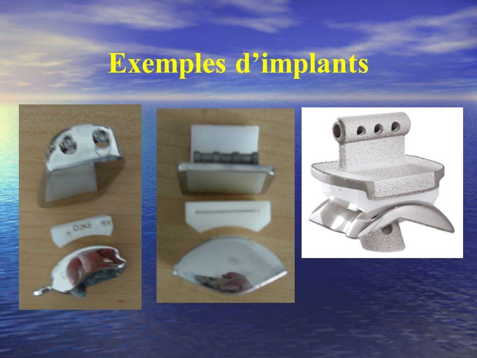 Exemples d'implants