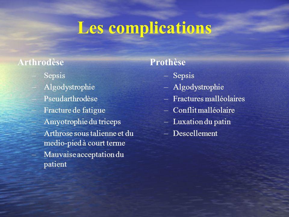 Les complications Arthrodèse Prothèse Sepsis Algodystrophie
