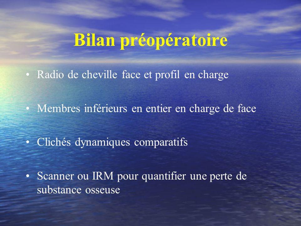 Bilan préopératoire Radio de cheville face et profil en charge