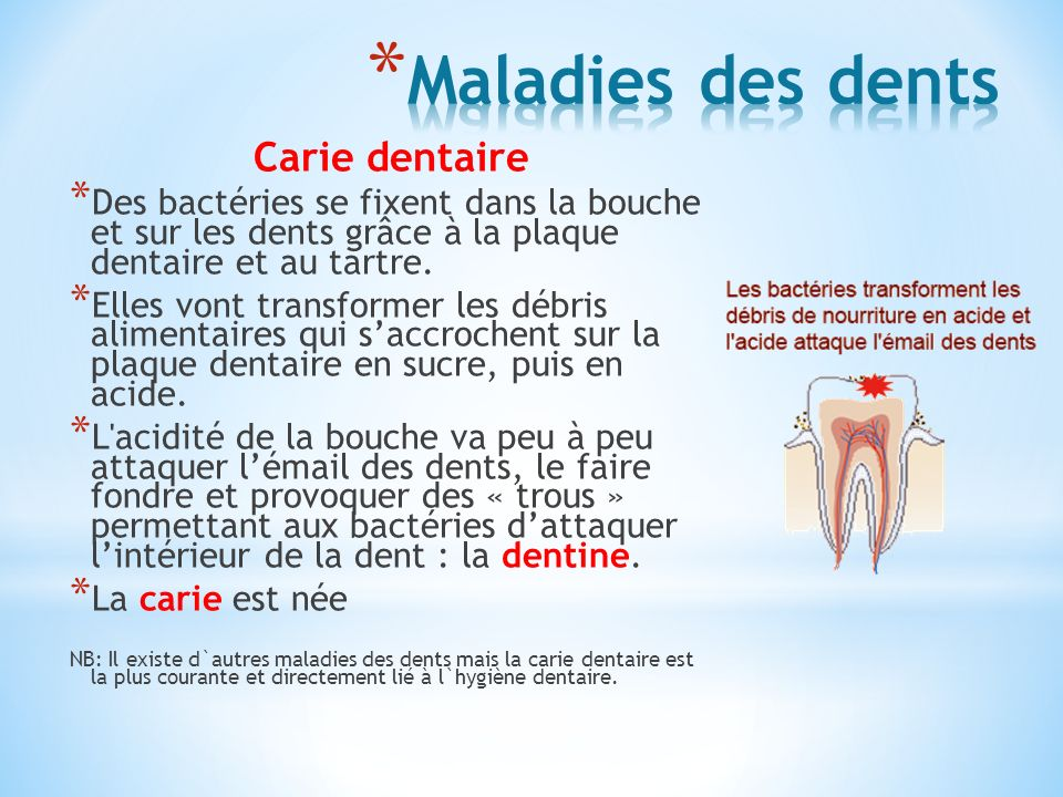 Maladies des dents Carie dentaire