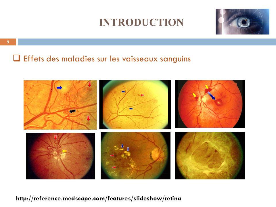 INTRODUCTION Effets des maladies sur les vaisseaux sanguins