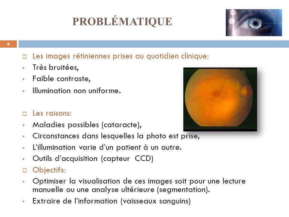PROBLÉMATIQUE Les images rétiniennes prises au quotidien clinique: