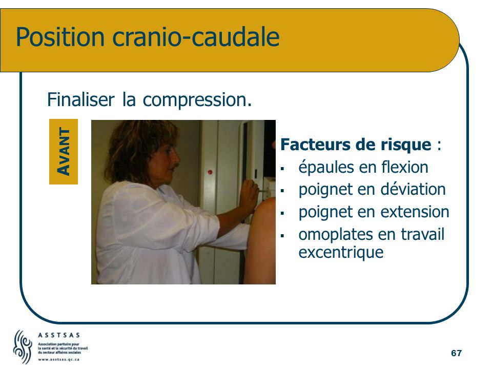 Position cranio-caudale