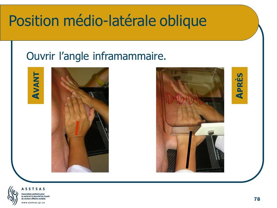 Position médio-latérale oblique