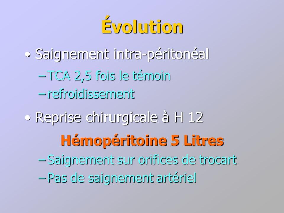 Évolution Saignement intra-péritonéal Reprise chirurgicale à H 12