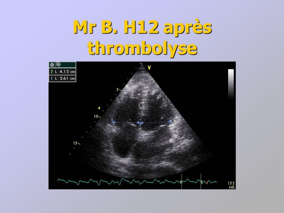 Mr B. H12 après thrombolyse