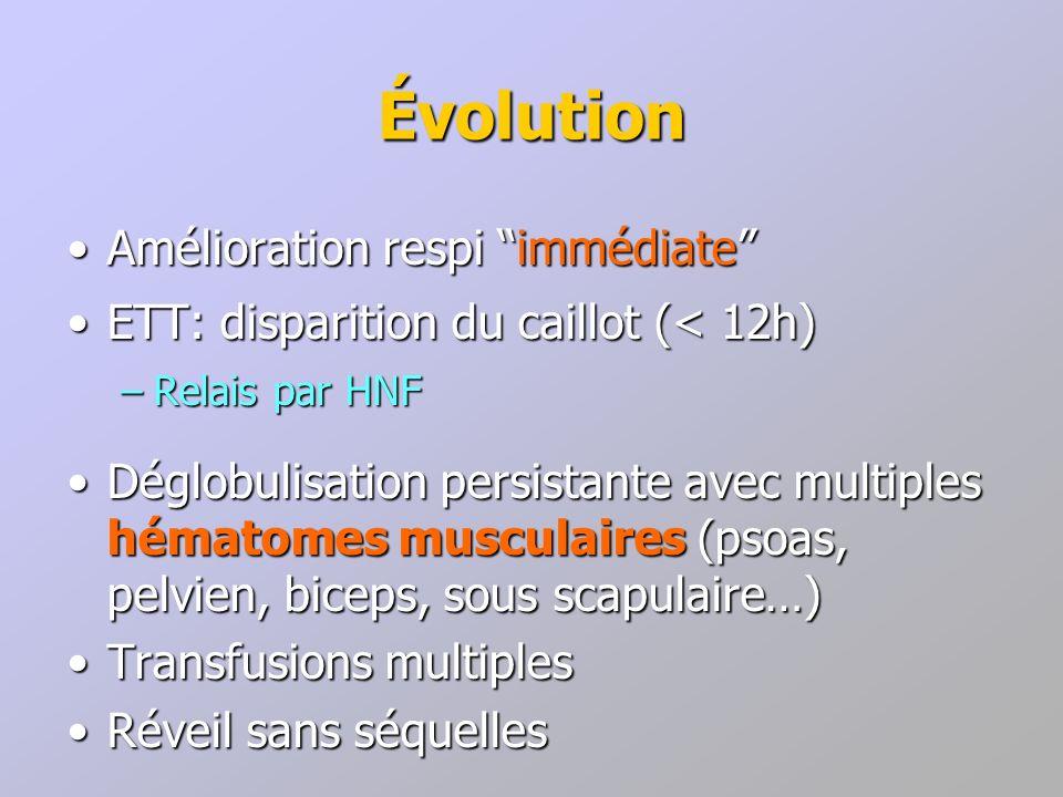 Évolution Amélioration respi immédiate
