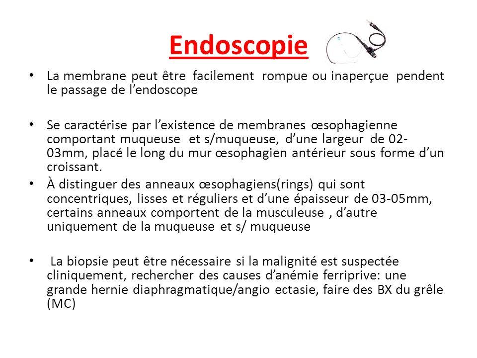 Endoscopie La membrane peut être facilement rompue ou inaperçue pendent le passage de l'endoscope.