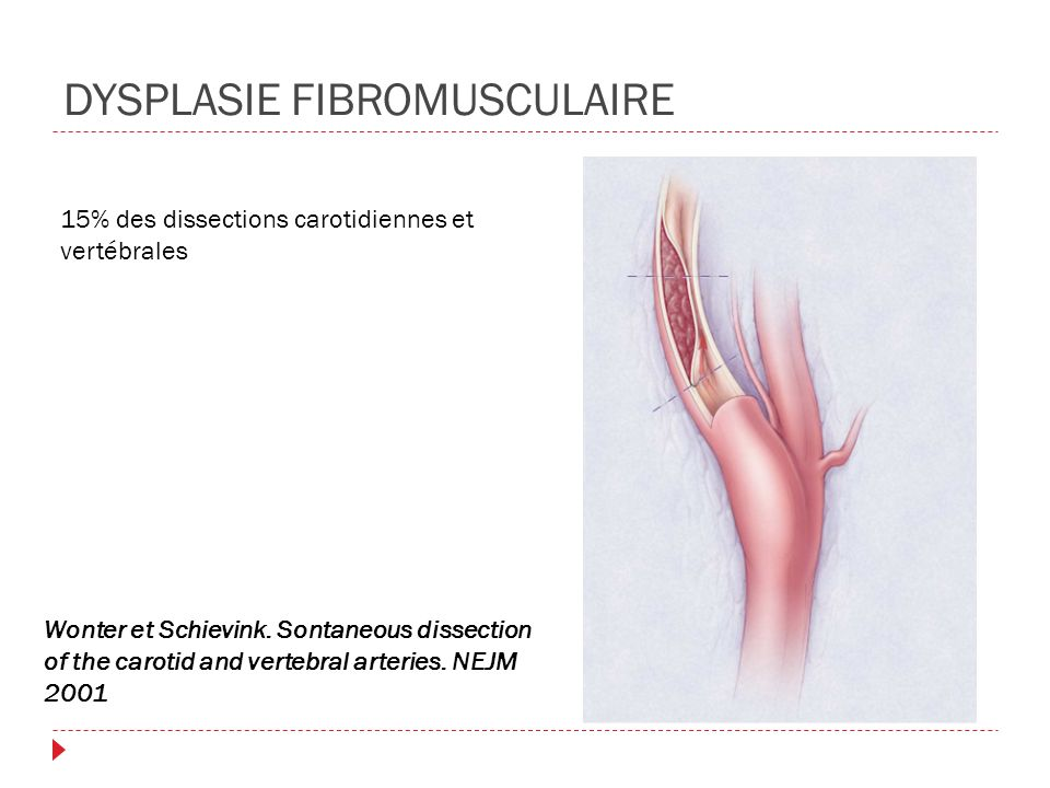 DYSPLASIE FIBROMUSCULAIRE