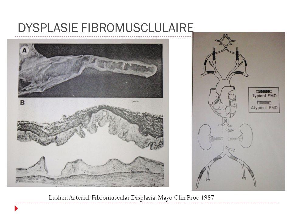 DYSPLASIE FIBROMUSCLULAIRE