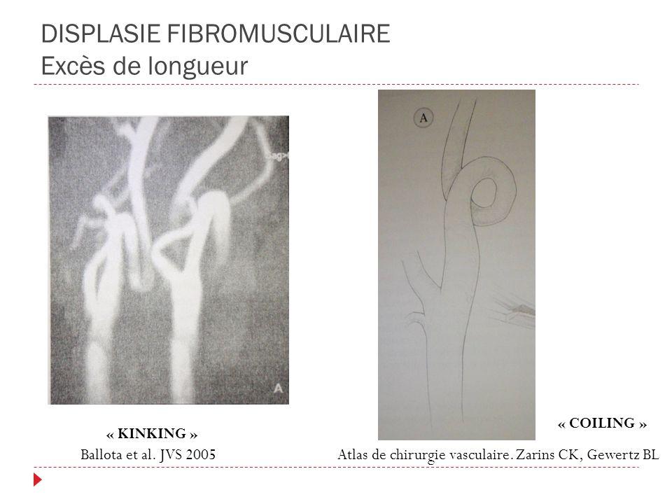DISPLASIE FIBROMUSCULAIRE Excès de longueur