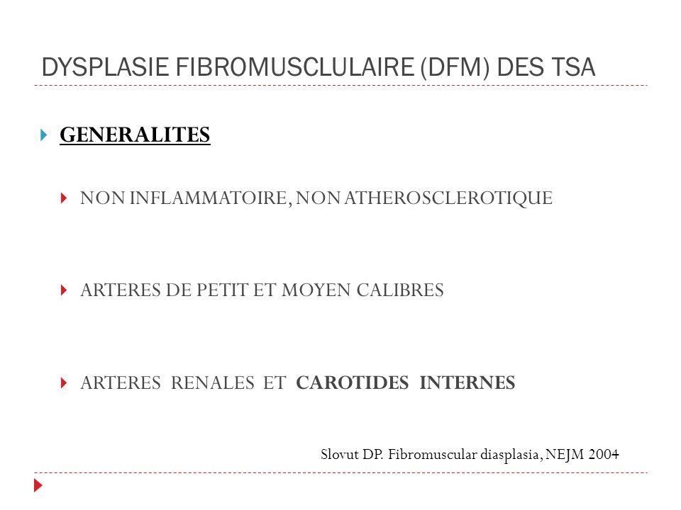 DYSPLASIE FIBROMUSCLULAIRE (DFM) DES TSA