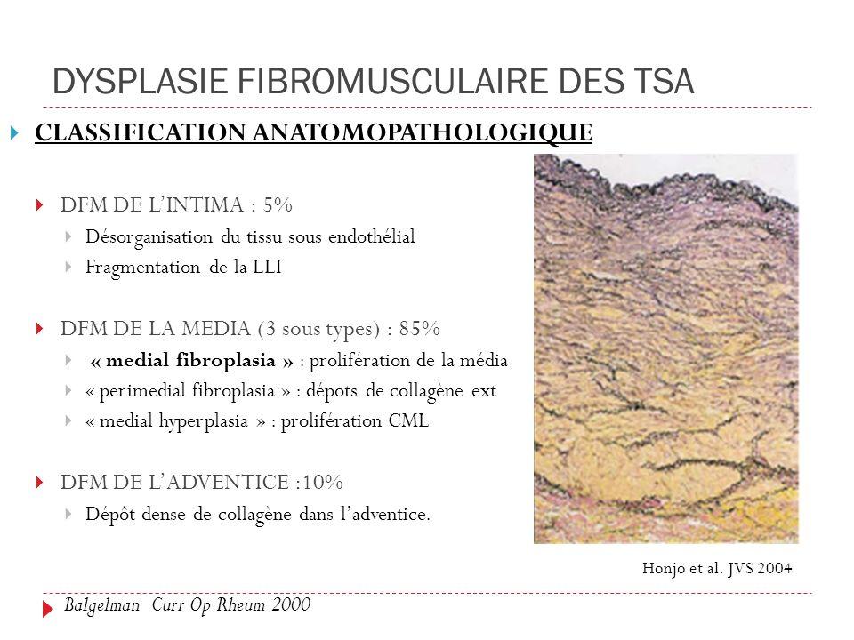 DYSPLASIE FIBROMUSCULAIRE DES TSA
