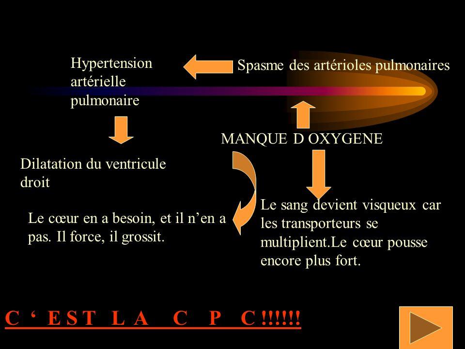 C ' E S T L A C P C !!!!!! Hypertension artérielle pulmonaire