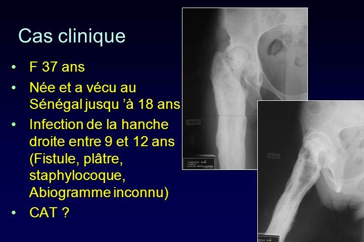 Cas clinique F 37 ans Née et a vécu au Sénégal jusqu 'à 18 ans