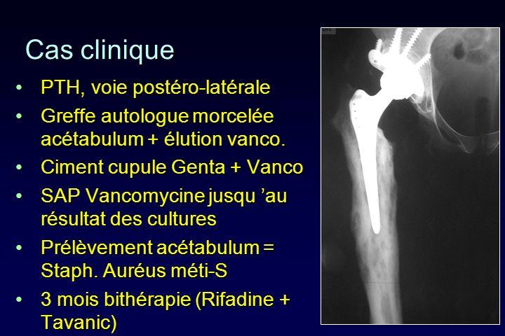 Cas clinique PTH, voie postéro-latérale
