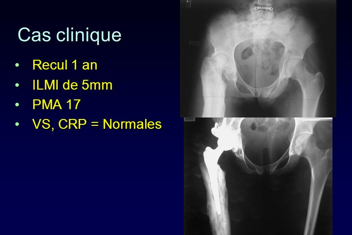 Cas clinique Recul 1 an ILMI de 5mm PMA 17 VS, CRP = Normales