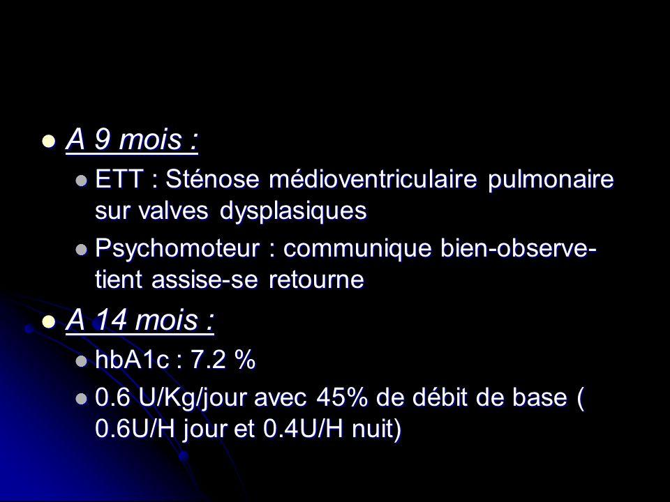 A 9 mois : ETT : Sténose médioventriculaire pulmonaire sur valves dysplasiques. Psychomoteur : communique bien-observe-tient assise-se retourne.