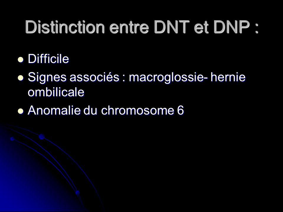 Distinction entre DNT et DNP :