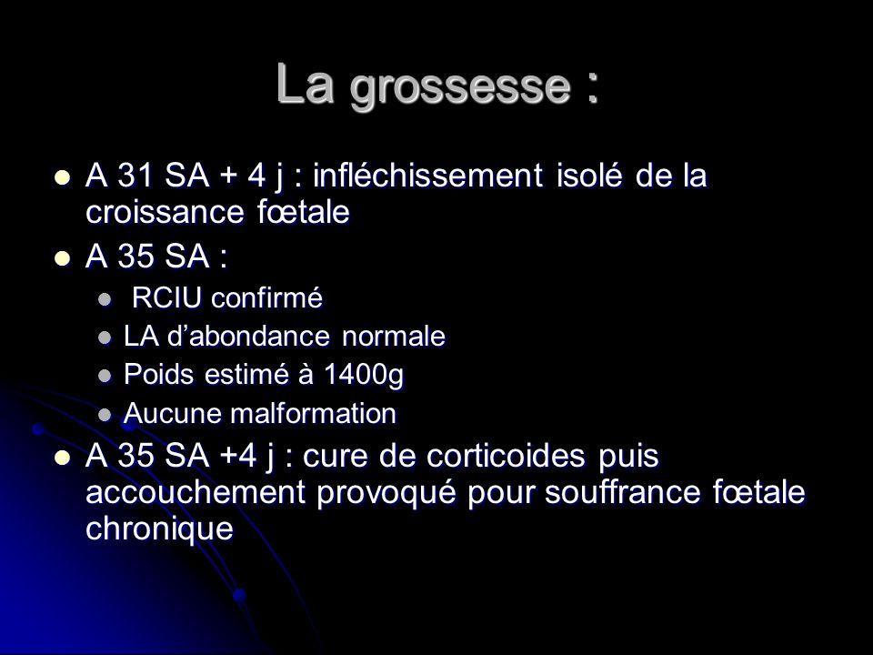 La grossesse : A 31 SA + 4 j : infléchissement isolé de la croissance fœtale. A 35 SA : RCIU confirmé.