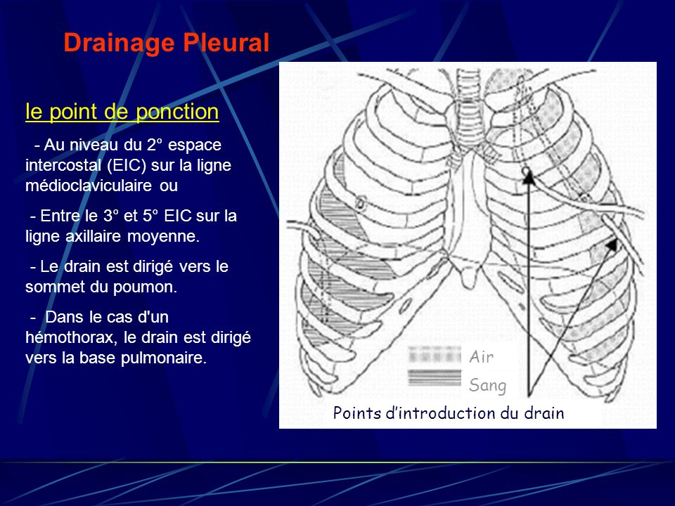 Drainage Pleural le point de ponction