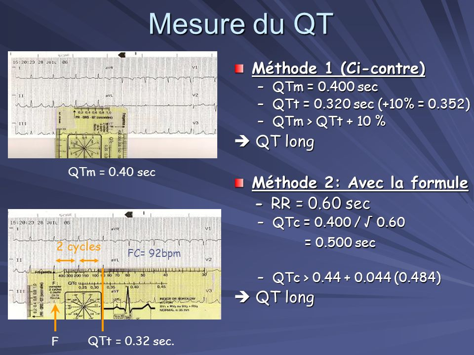 Mesure du QT Méthode 1 (Ci-contre)  QT long